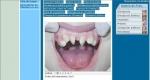 Micro implantes o mini implantes para ortodoncia
