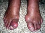 ¿Cuáles son los alimentos que causan la enfermedad de gota?