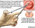¿Qué es una biopsia de cuello uterino?