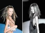 Anorexia - La Enfermedad Modelo