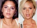 Efectos secundarios de la cirugía estética