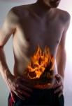 11 Remedios Caseros para aliviar la Gastritis