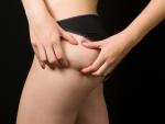 Clasificación y Tratamiento de la Celulitis