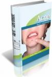 ¿Es posible prevenir el acné en un adulto?