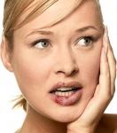 Cómo prevenir el herpes labial