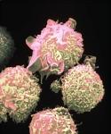 ¿Qué es el cáncer de sangre?