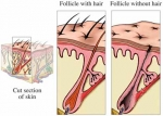 La alopecia