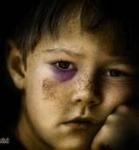 Violencia Infantil. Madres con trastornos. Violencia psicológica peligrosa