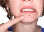 ¿Qué causa el acné y qué tipos de acné existen?