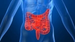 Síndrome Del Colon Irritable (Sci), El Caos En Los Intestinos