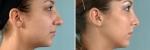 Qué es una cirugía de rinoplastia?