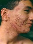 El milagro para el acne