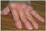 Si me cure de mi artritis usted también puede