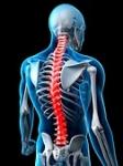 Como curar el dolor de espalda