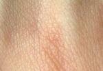 Los injertos y enfermedades de la piel