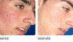 Formas de eliminar las cicatrices del acne