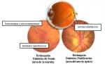 Causas y Prevención de Retinopatía diabética