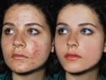 Cómo eliminar para siempre los agujeros del acné