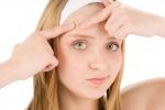 Remedios caseros para como eliminar los barros de la cara