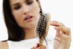 Los diferentes tratamientos disponibles para la caída del pelo