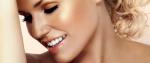 Tipos y marcas comerciales de carillas dentales