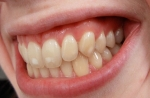 Cómo evitar manchas en los dientes