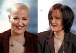 La Caída del Cabello por tratamientos médicos: Pelucas Oncológicas
