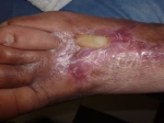 Las várices y su temible complicación, la úlcera varicosa