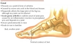 Los remedios caseros para la artritis gotosa (altos de ácido úrico)