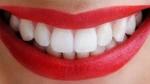 Con carillas de porcelana puedes lucir una sonrisa perfecta y saludable