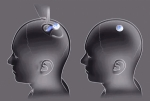 Neuralink: el siguiente paso de la interacción humano-maquina