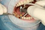Todo lo que debes saber antes de hacerte tus implantes dentales